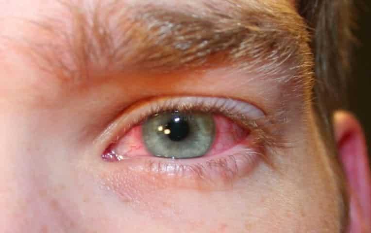 Просыпаюсь с красными глазами