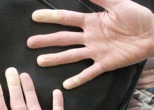 Ночью немеет правая рука: Причины онемения во время сна